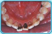 Как самостоятельно убрать зубной налет, и что предлагает современная стоматология, удаление зубного налета